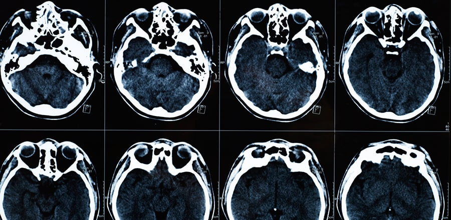 Chattanooga Traumatic Brain Injury Lawyers
