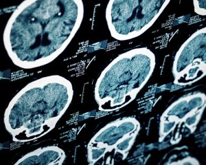 New Imaging Process Reveals More about Mild Traumatic Brain Injuries